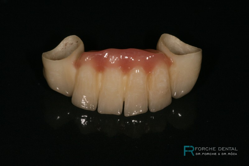 FORCHE DENTAL Brücke